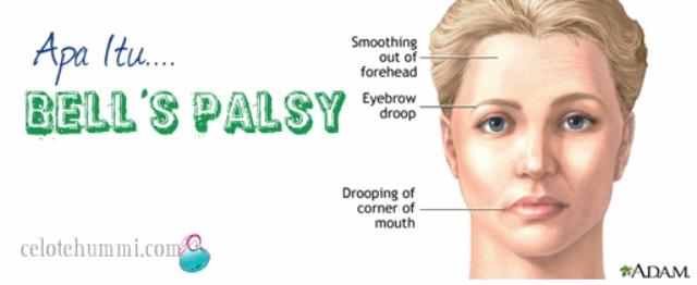 Bell's Palsy - Simptom
