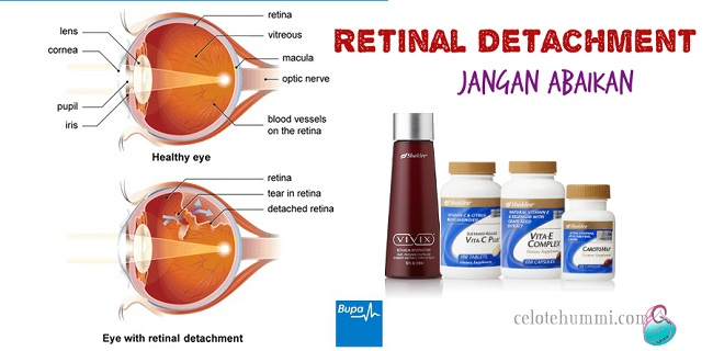 retinal-detachment-shaklee